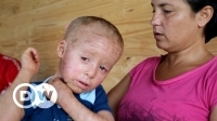 glyphosate_-_the_sick_children_of_argentina_orf_documentary_2017
